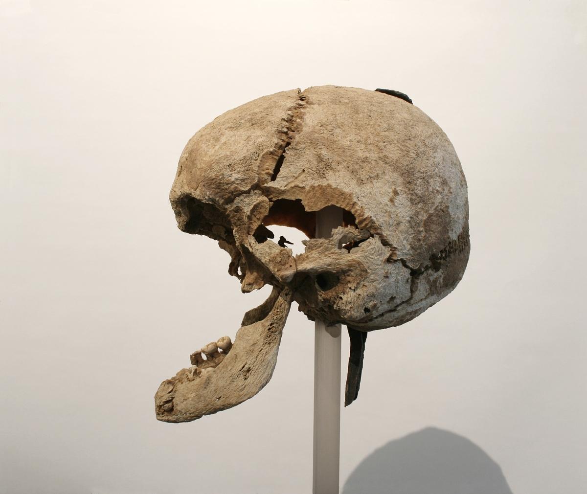 Menneskekranium der midtpartiet i ansiktet mangler. En lang jernnagle gjennomborer issen.