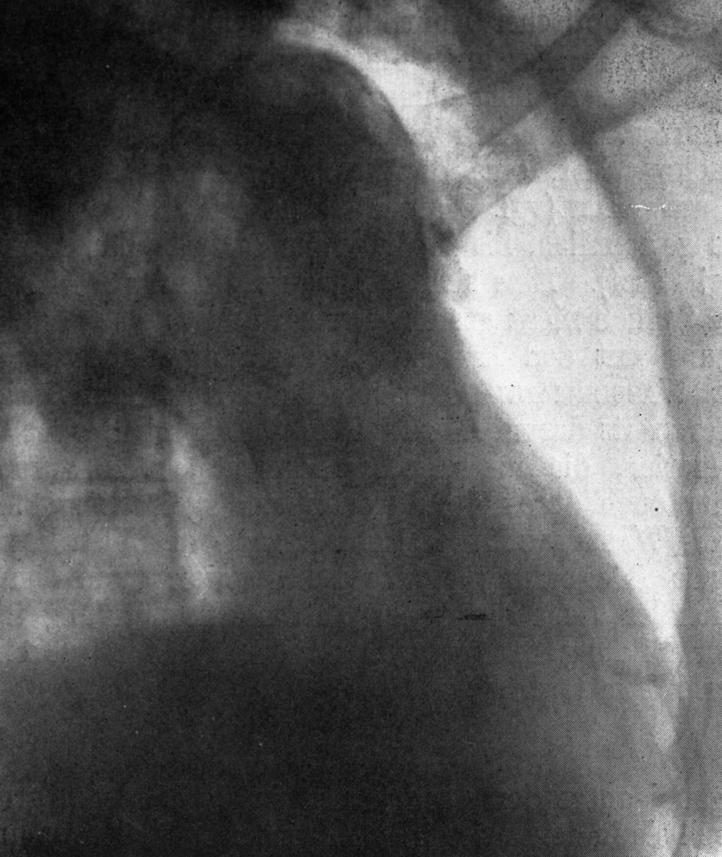 Røntgenbilde bryst (Aortitis luetica)